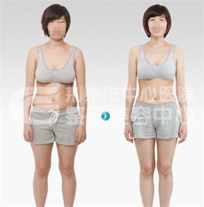 腰腹吸脂术塑造S型腰身