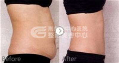 腰腹吸脂术使您身材更有线条感