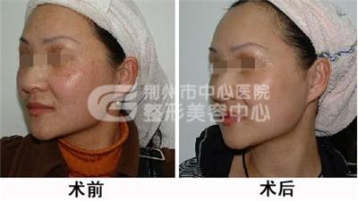 黄褐斑针灸治疗