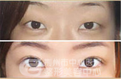 韩式双眼皮是永久的吗?