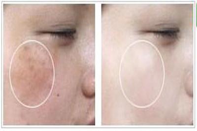 激光去晒斑会留疤吗?