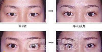 韩式双眼皮术后应注意什么?