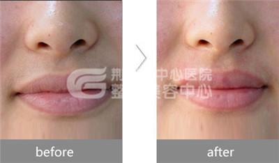 激光脱唇毛作用如何呢?