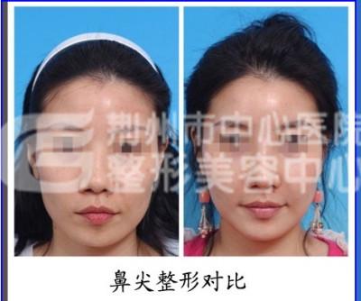 微创隆鼻手术是什么?