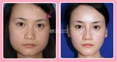 改脸型手术安全性怎么样呢?