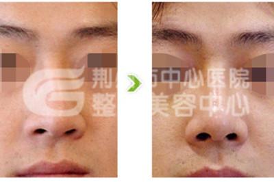 隆鼻材料有哪几种呢?