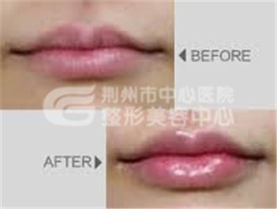 唇珠再造手术需要注意什么?