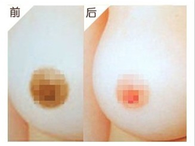 乳晕漂红手术有什么特点呢