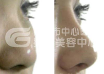 假体隆鼻手术不适合哪些人?