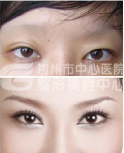 开眼角手术有无后遗症呢?