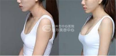 自体脂肪隆胸的作用有哪些?