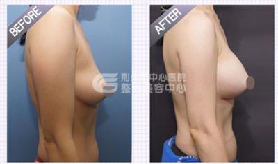 自体脂肪隆胸的原理是什么?