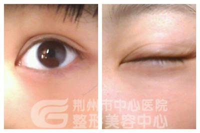 荆州韩式双眼皮有什么特点?