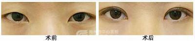 单眼皮如何做重脸术?