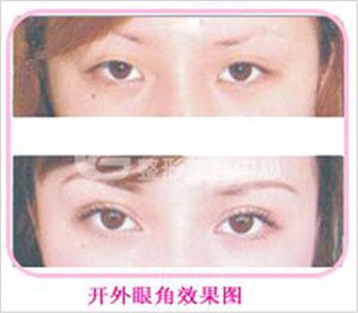 荆州开眼角手术不适宜哪些人?