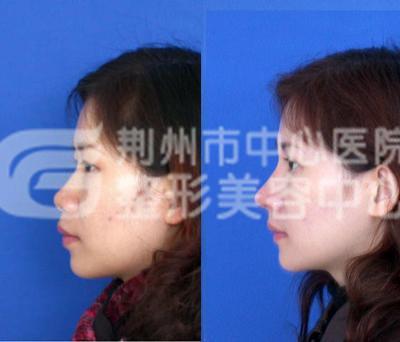伊维兰注射隆鼻术的优势有哪些?