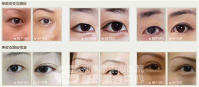 双眼皮手术后多久可以拆线?