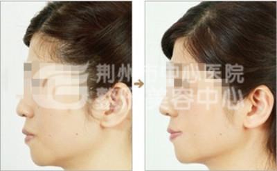 假体隆鼻手术的优势有哪些?