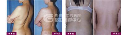 背部吸脂手术应该注意什么?