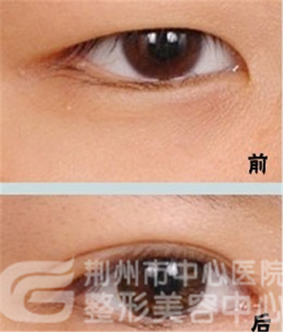 埋线双眼皮手术是否留疤?