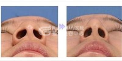鼻翼缩小手术会不会出现后遗症?