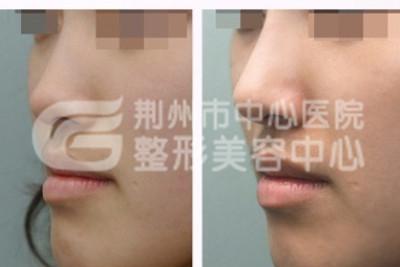 膨体隆鼻材料都有什么特点呢?