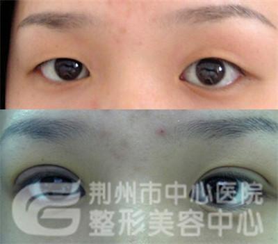 双眼皮手术的方式有哪几种?