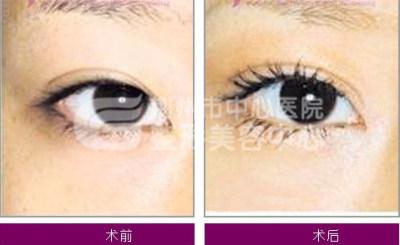 荆州无痕开眼角手术的效果如何?