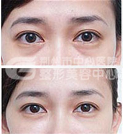 荆州切眉术的方法有哪几种?