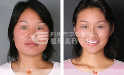 瘦脸针适合哪些人?