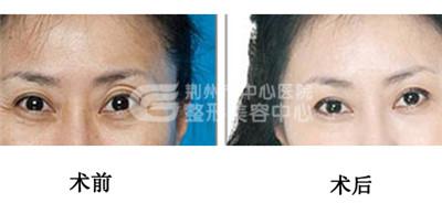 电波拉皮除皱会不会出现疤痕呢?
