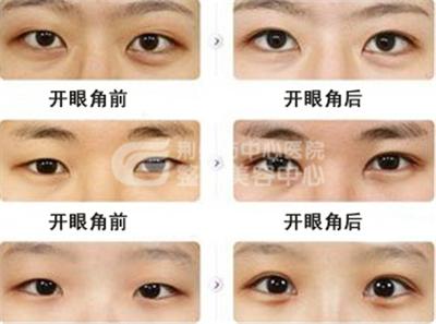 如何避免开外眼角的后遗症?