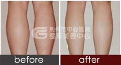 小腿吸脂手术能维持多久呢?