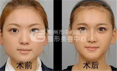 荆州注射瘦脸针的价格是多少?