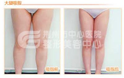 什么是大腿吸脂减肥呢